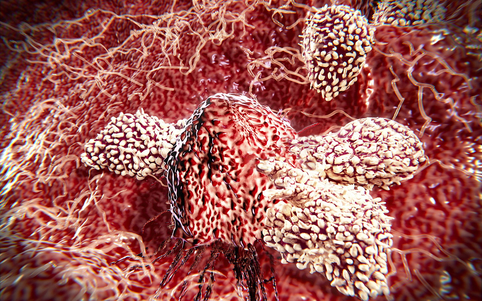 Computer illustration of cytotoxic T-lymphocytes attacking a cancer cell. UConn Health researchers are developing a technology that can identify which patients will respond to immunotherapy, with the goal of extending the benefits of the treatment to a wider group of patients. (Juan Gaertner/Science Photo Library via Getty Images)